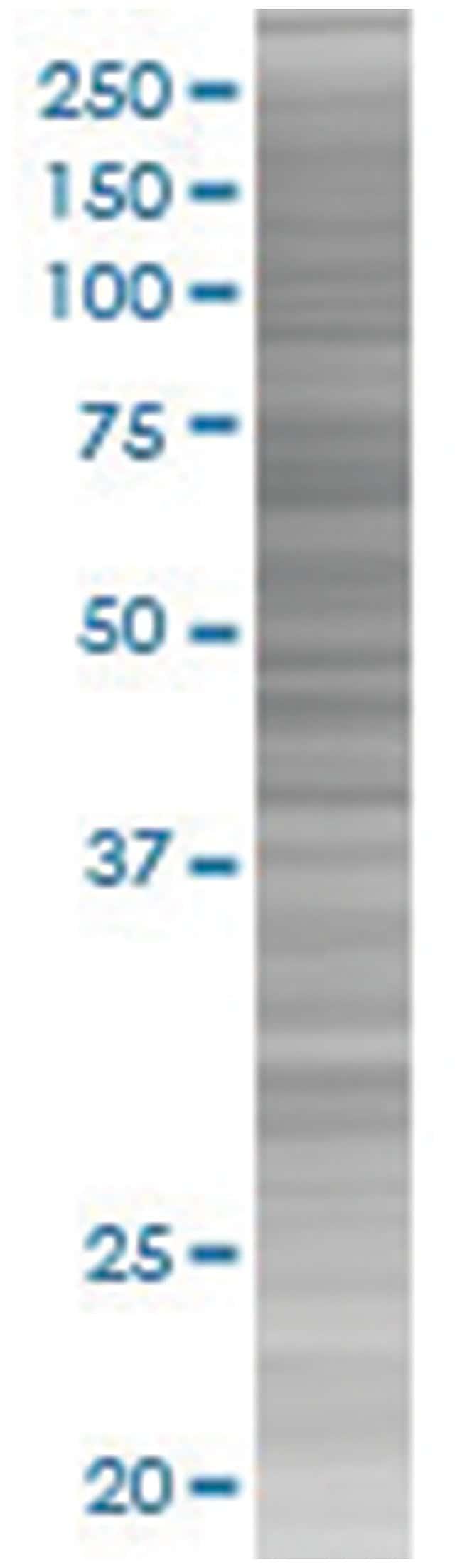 LGALS3BP 293T Cell Overexpression Lysate (Denatured), Abnova 100µL:Life