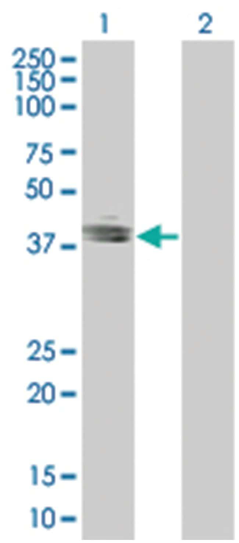 TACSTD1 293T Cell Overexpression Lysate 1 (Denatured), Abnova 100µL:Life