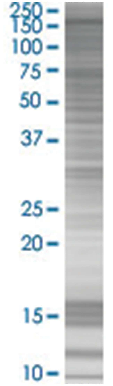 NBR1 293T Cell Overexpression Lysate (Denatured), Abnova 100µL:Life