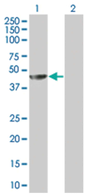 MAGEA4 293T Cell Overexpression Lysate (Denatured), Abnova 100µL:Life