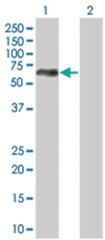 MAOA 293T Cell Overexpression Lysate (Denatured), Abnova 100µL:Life
