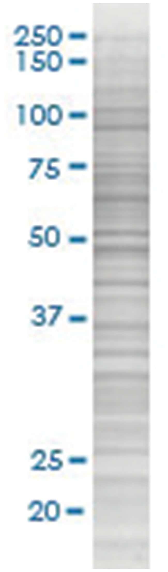 MEF2D 293T Cell Overexpression Lysate (Denatured), Abnova 100µL:Life
