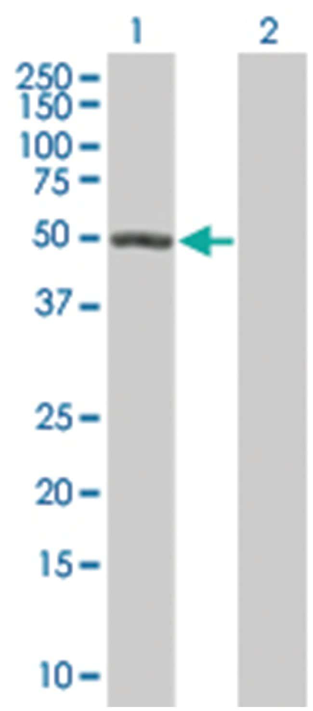 MPP1 293T Cell Overexpression Lysate (Denatured), Abnova 100µL:Life