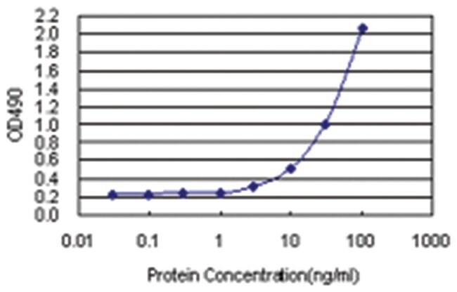 MPP3, Human, Matched Antibody Pair (AP21), Abnova 1 set, Unlabeled:Life