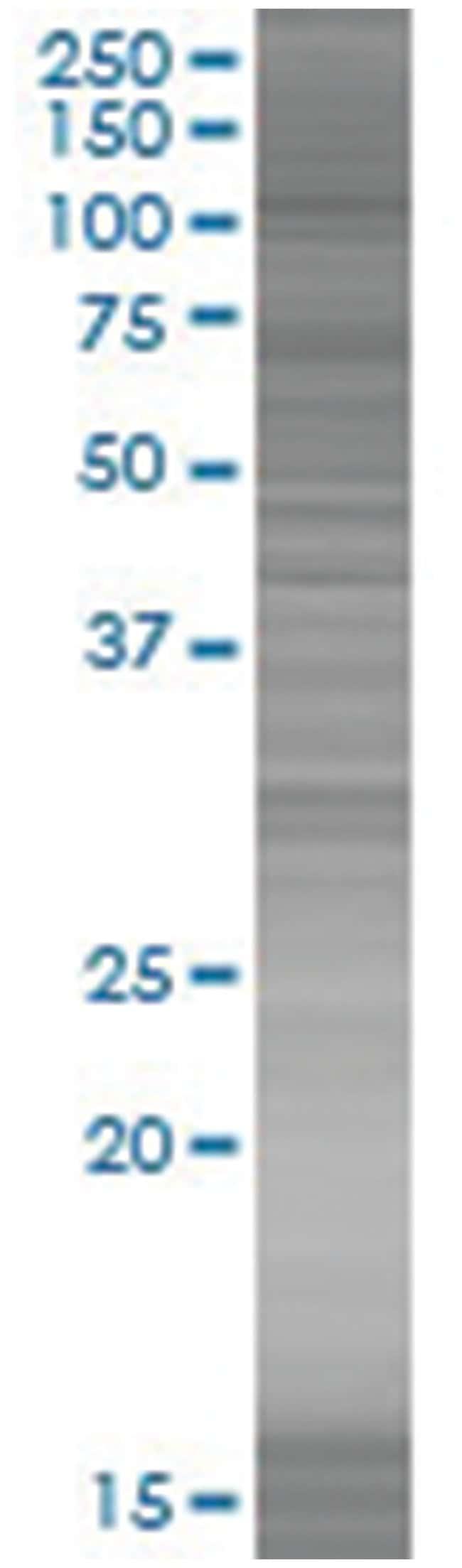 MSH2 293T Cell Overexpression Lysate (Denatured), Abnova 100µL:Life