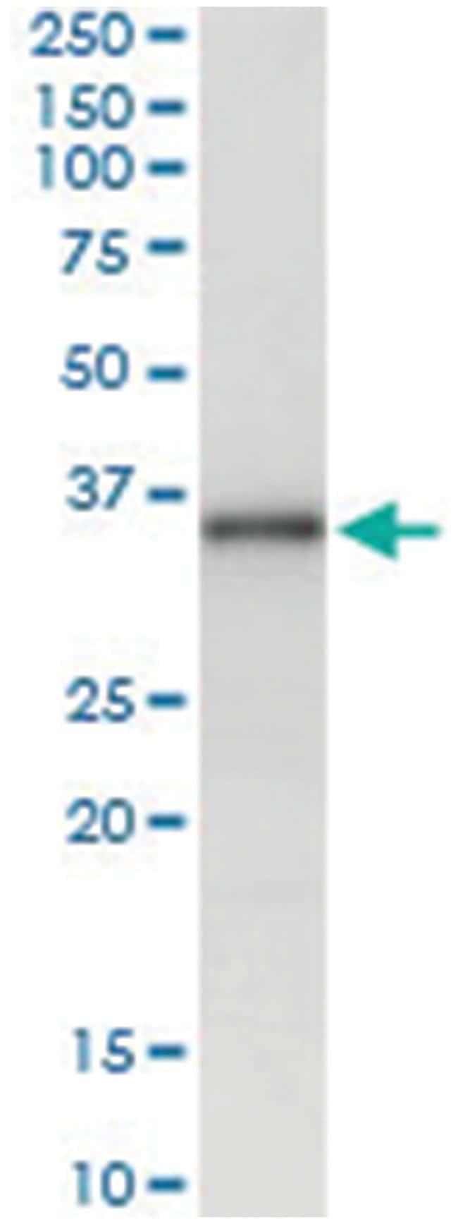 MSX1, Human, IP-WB Antibody Pair (PW4), Abnova 1 Set:Life Sciences