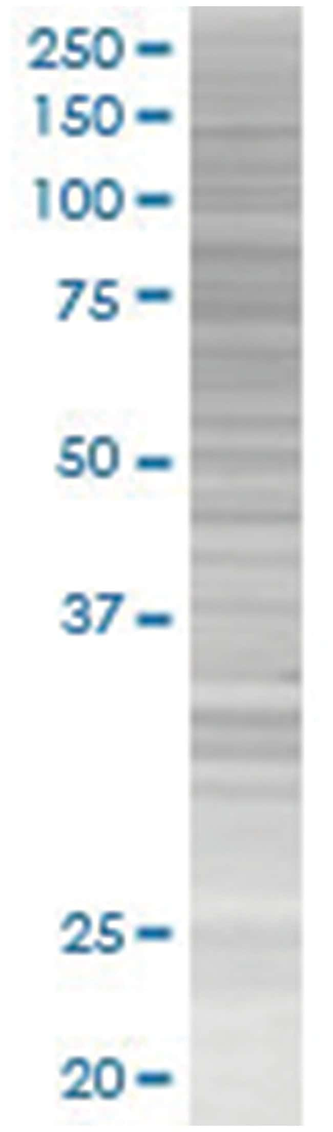 MYB 293T Cell Overexpression Lysate (Denatured), Abnova 100µL:Life