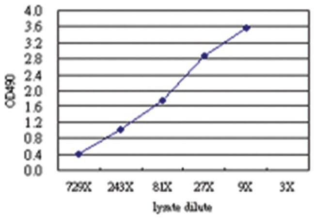 anti-MYBPH Matched Antibody Pair, Abnova 1 Set, Unlabeled:Life Sciences