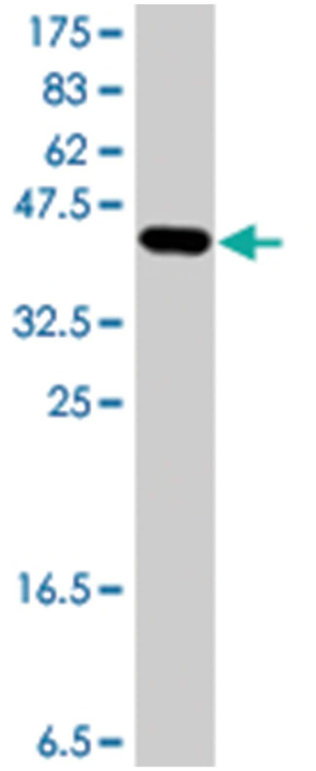 NDUFV3, Mouse, Polyclonal Antibody, Abnova 50µL; Unlabeled