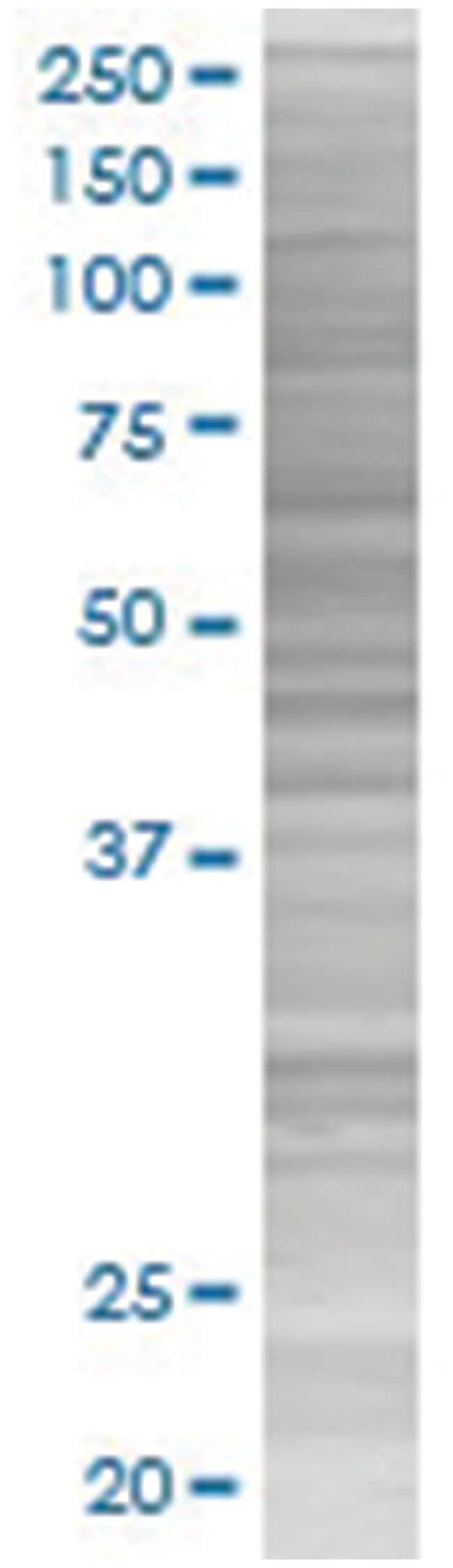 NTRK2 293T Cell Overexpression Lysate (Denatured), Abnova 100µL:Life