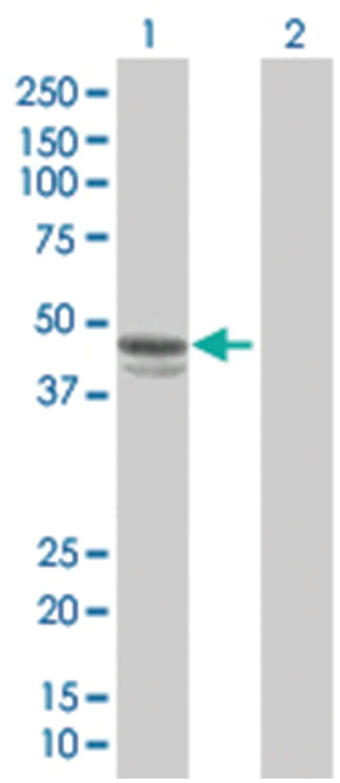 SERPINE1 293T Cell Overexpression Lysate 2 (Denatured), Abnova 100µL:Life