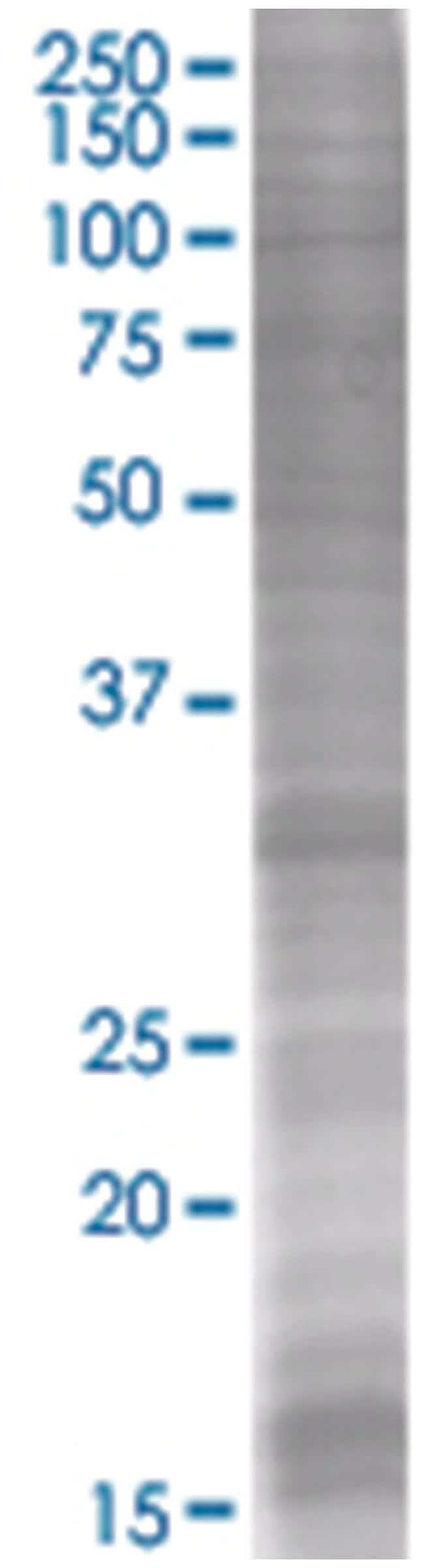 PDYN 293T Cell Overexpression Lysate (Denatured), Abnova 100µL:Life
