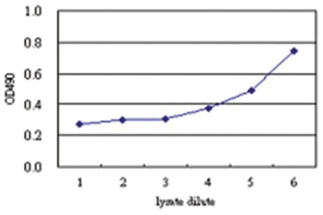 anti-PGM3 Matched Antibody Pair, Abnova 1 Set, Unlabeled:Life Sciences