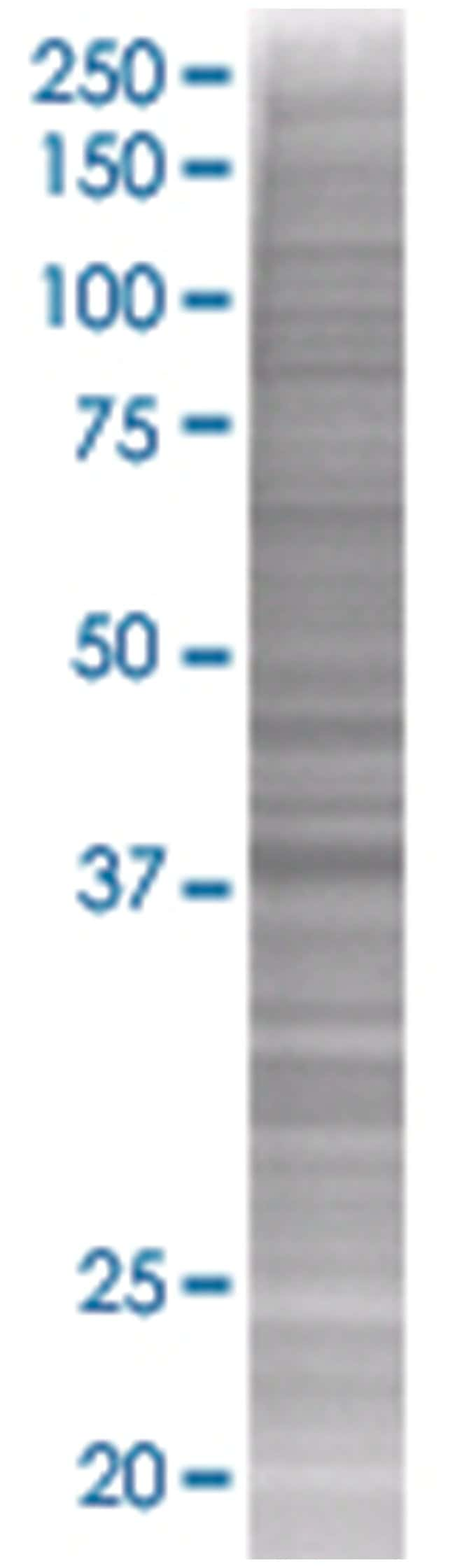 PPID 293T Cell Overexpression Lysate (Denatured), Abnova 100µL:Life