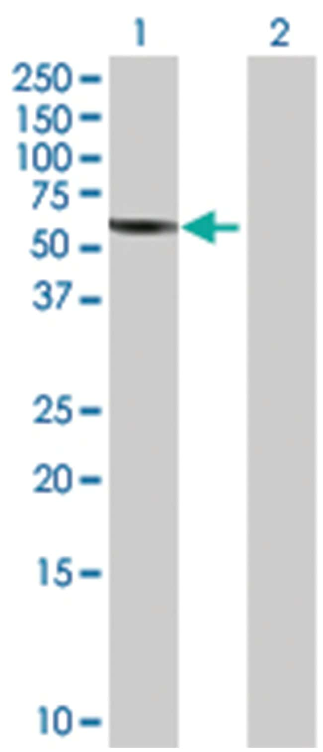 PPP2R1B 293T Cell Overexpression Lysate (Denatured), Abnova 100µL:Life