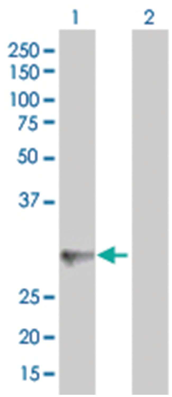 PRG2 293T Cell Overexpression Lysate (Denatured), Abnova 100µL:Life