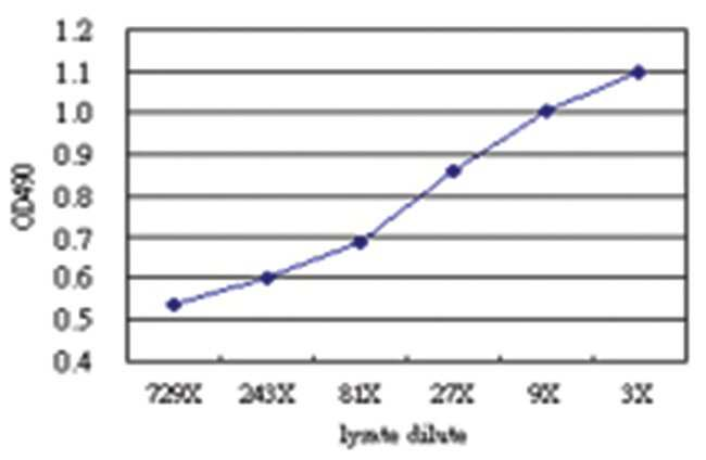 anti-PRKAB1 Matched Antibody Pair, Abnova 1 Set, Unlabeled:Life Sciences