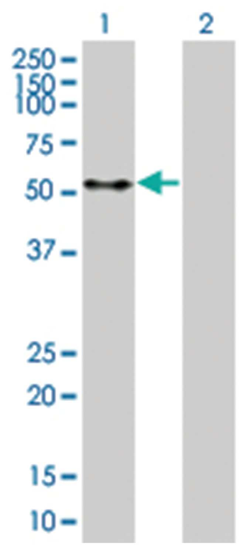 PTEN 293T Cell Overexpression Lysate 2 (Denatured), Abnova 100µL:Life