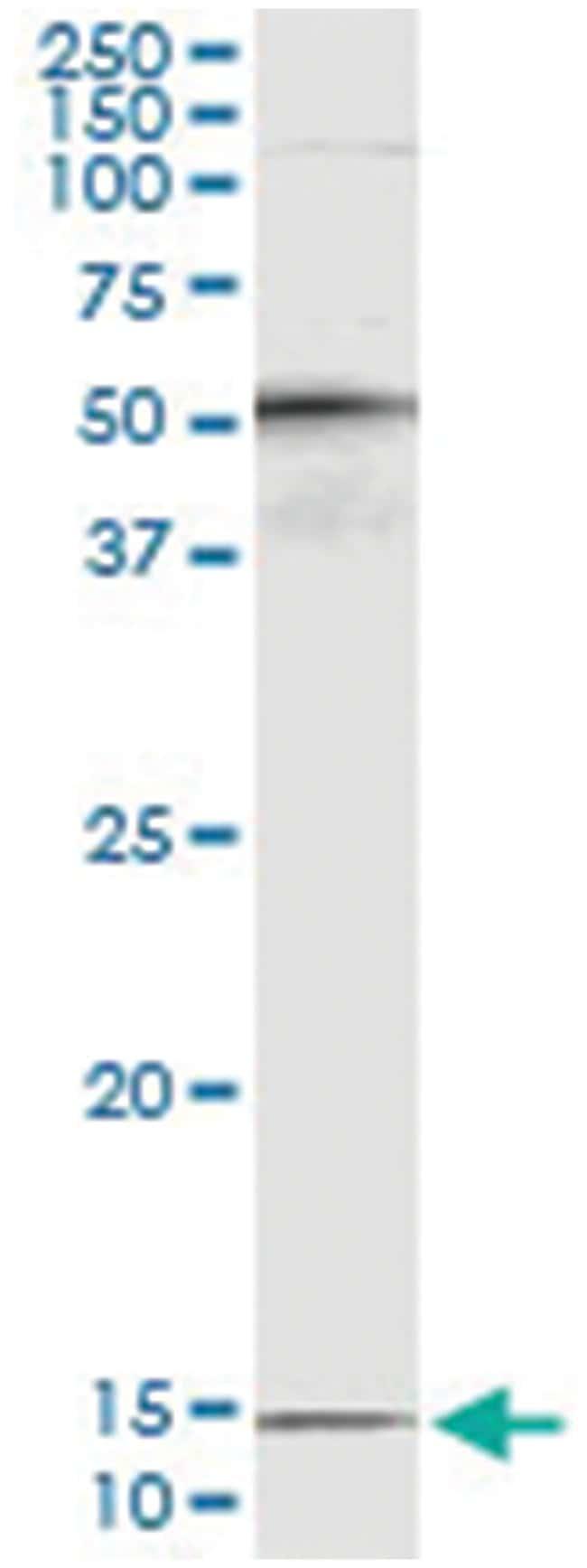PTH, Human, IP-WB Antibody Pair (PW3), Abnova 1 Set:Antibodies
