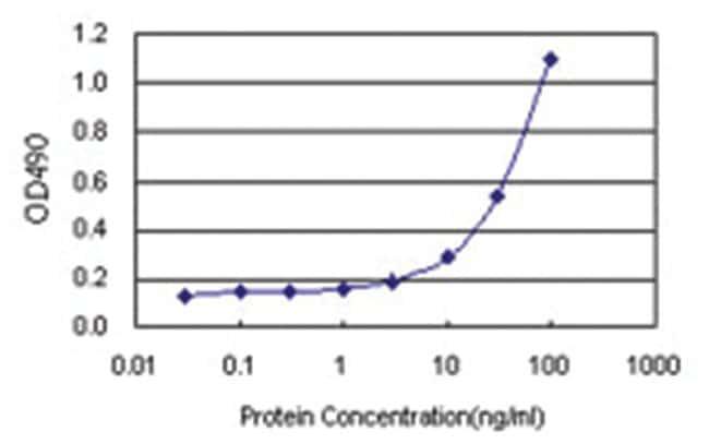 anti-PTPN2 Matched Antibody Pair, Abnova 1 set, Unlabeled:Life Sciences