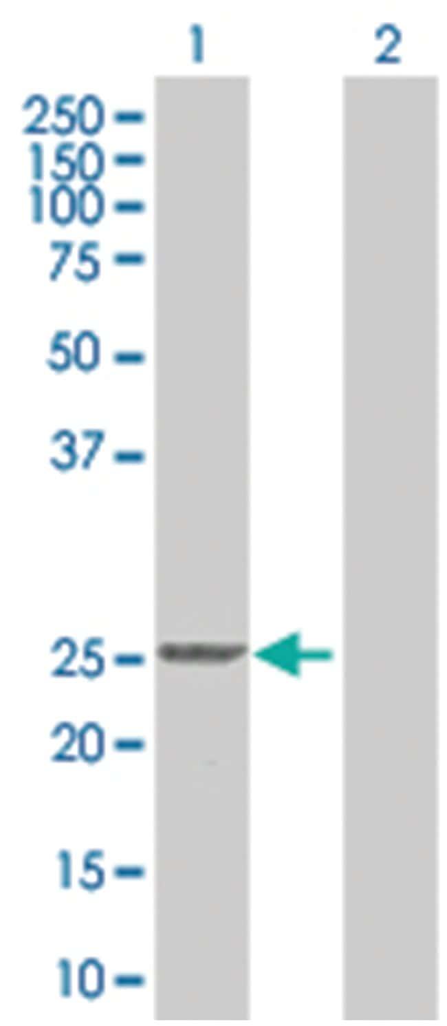 RAB4A 293T Cell Overexpression Lysate (Denatured), Abnova 100µL:Life