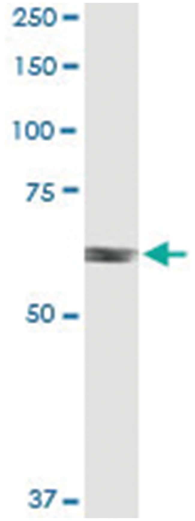 anti-RARS, Human, IP-WB Antibody Pair, Abnova 1 Set:Life Sciences