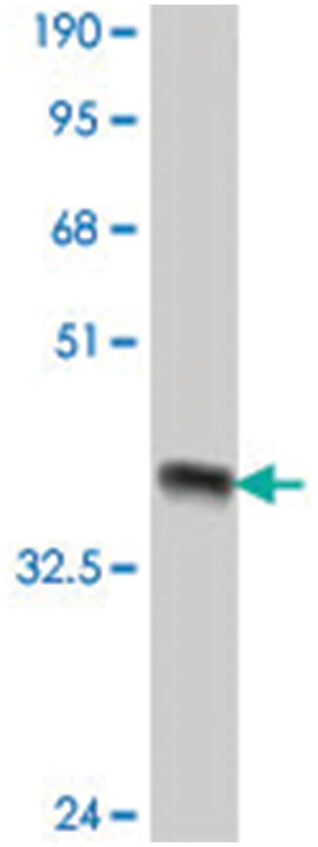 ROBO1, Mouse, Polyclonal Antibody, Abnova 50µL; Unlabeled