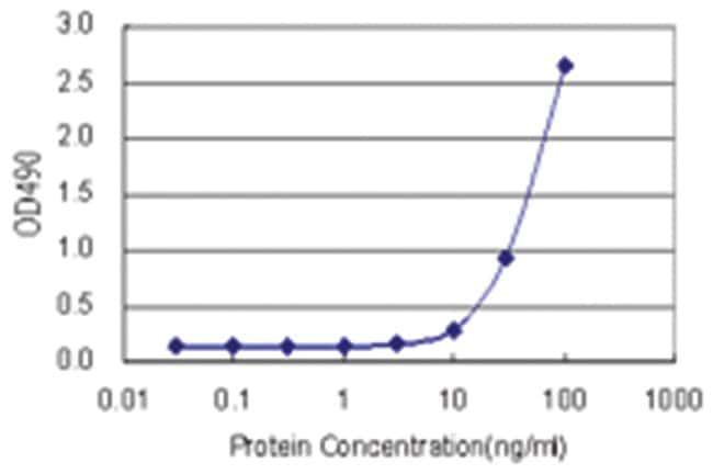 anti-S100A7 Matched Antibody Pair, Abnova 1 Set, Unlabeled:Life Sciences