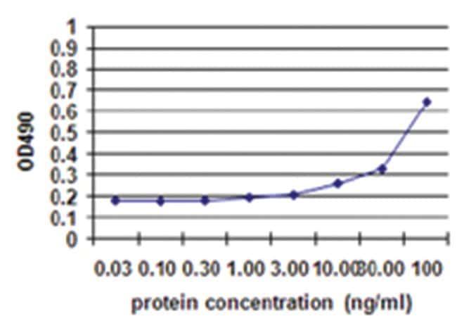 S100B, Human, Matched Antibody Pair (AP45), Abnova 1 set, Unlabeled, Biotinylated:Life