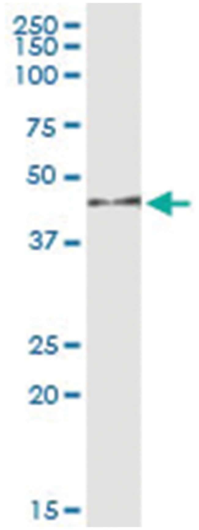 anti-MAPK12, Human, IP-WB Antibody Pair, Abnova 1 Set:Life Sciences