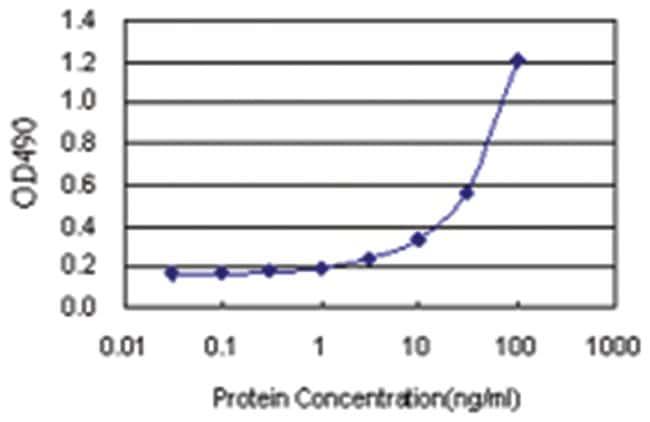 anti-SFTPB Matched Antibody Pair, Abnova 1 Set, Unlabeled:Life Sciences