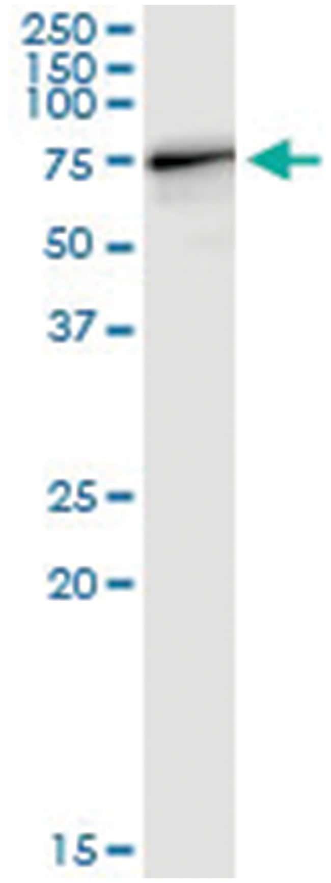 anti-STAU1, Human, IP-WB Antibody Pair, Abnova 1 Set:Antibodies