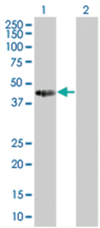 TCEA2 293T Cell Overexpression Lysate 1 (Denatured), Abnova 100μL:Protein