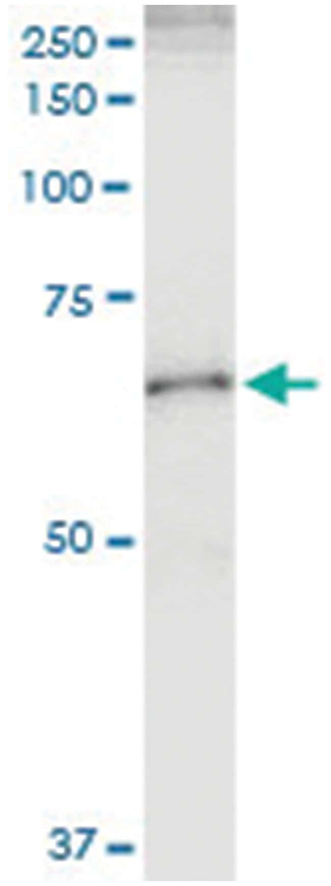 anti-UGT2B15, Human, IP-WB Antibody Pair, Abnova 1 Set:Life Sciences