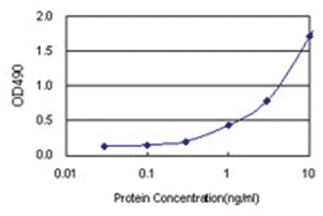 anti-XPA Matched Antibody Pair, Abnova 1 set, Unlabeled:Life Sciences