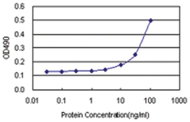 anti-CCDC6 Matched Antibody Pair, Abnova 1 set, Unlabeled:Life Sciences