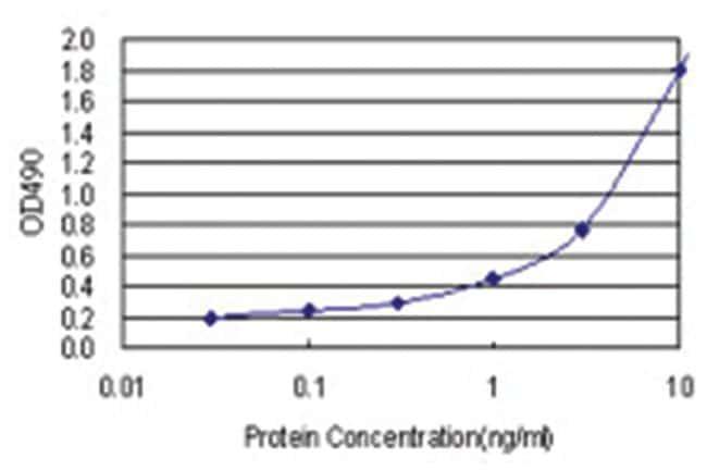 RIOK3, Human, Matched Antibody Pair (AP21), Abnova 1 set, Unlabeled:Life