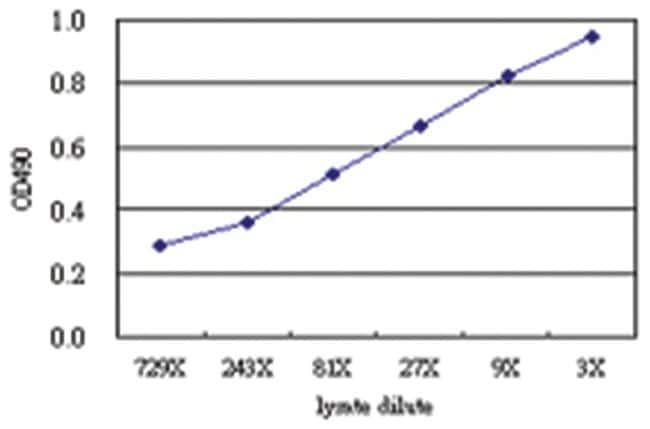 anti-SPHK1 Matched Antibody Pair, Abnova 1 Set, Unlabeled:Life Sciences