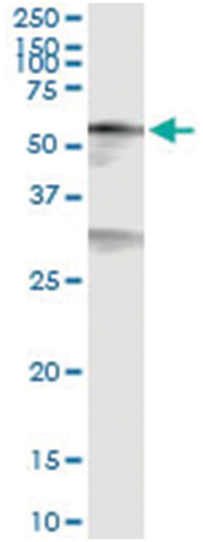 anti-CREB5, Human, IP-WB Antibody Pair, Abnova 1 Set:Life Sciences