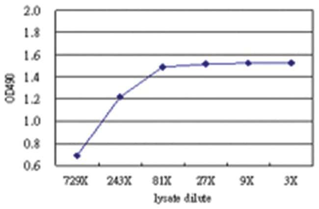 anti-CAP1 Matched Antibody Pair, Abnova 1 Set, Unlabeled:Life Sciences