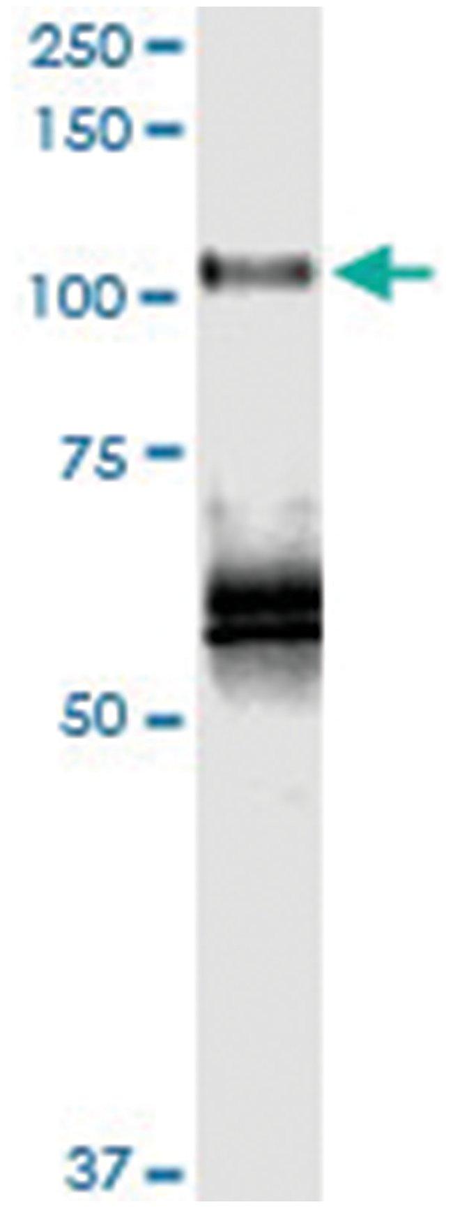 anti-PLK4, Human, IP-WB Antibody Pair, Abnova 1 Set:Antibodies