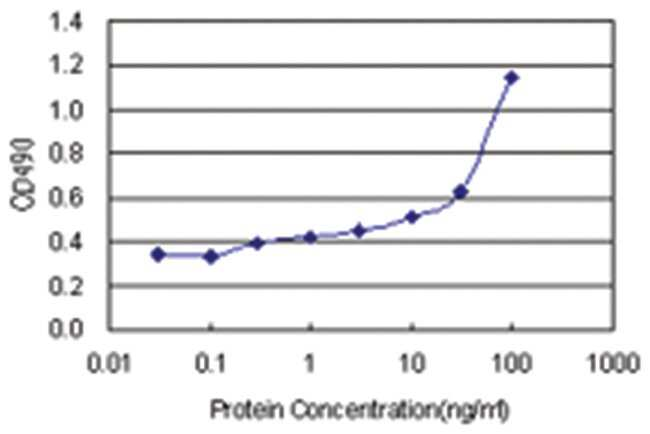 anti-FGL2 Matched Antibody Pair, Abnova 1 Set, Unlabeled:Life Sciences
