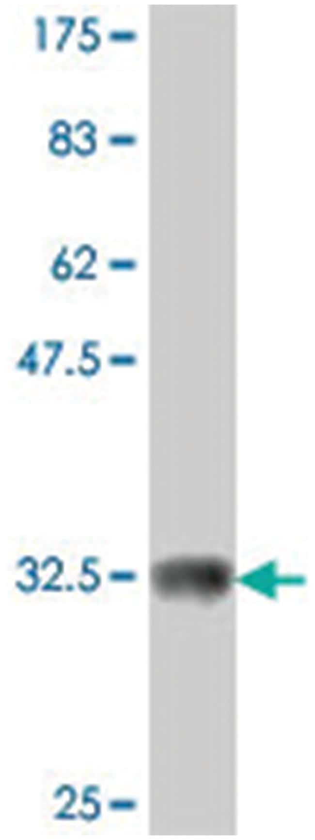 ARHGAP26, Mouse, Polyclonal Antibody, Abnova 50µL; Unlabeled