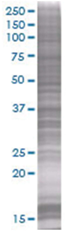 QPRT 293T Cell Overexpression Lysate (Denatured), Abnova 100μL:Protein