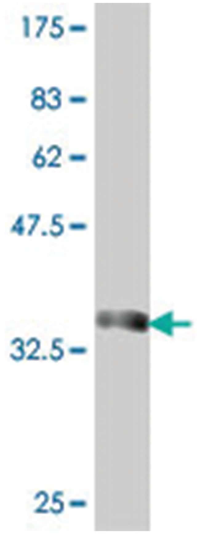zinc finger protein 500, Mouse, Polyclonal Antibody, Abnova 50µL;