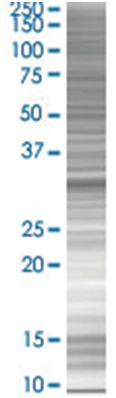 ZBTB32 293T Cell Overexpression Lysate 2 (Denatured), Abnova 100µL:Life