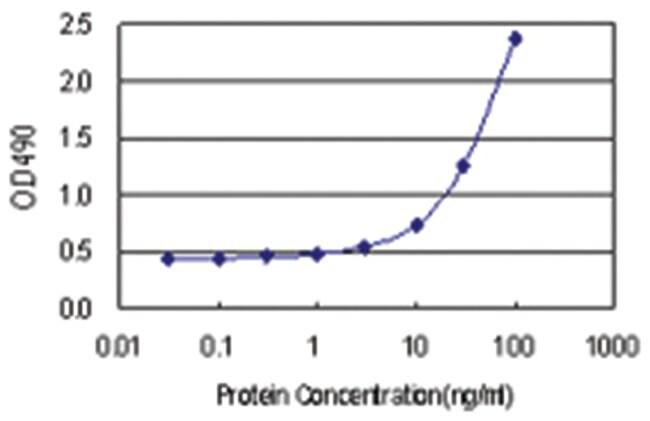 anti-DNMT3L Matched Antibody Pair, Abnova 1 set, Unlabeled:Life Sciences