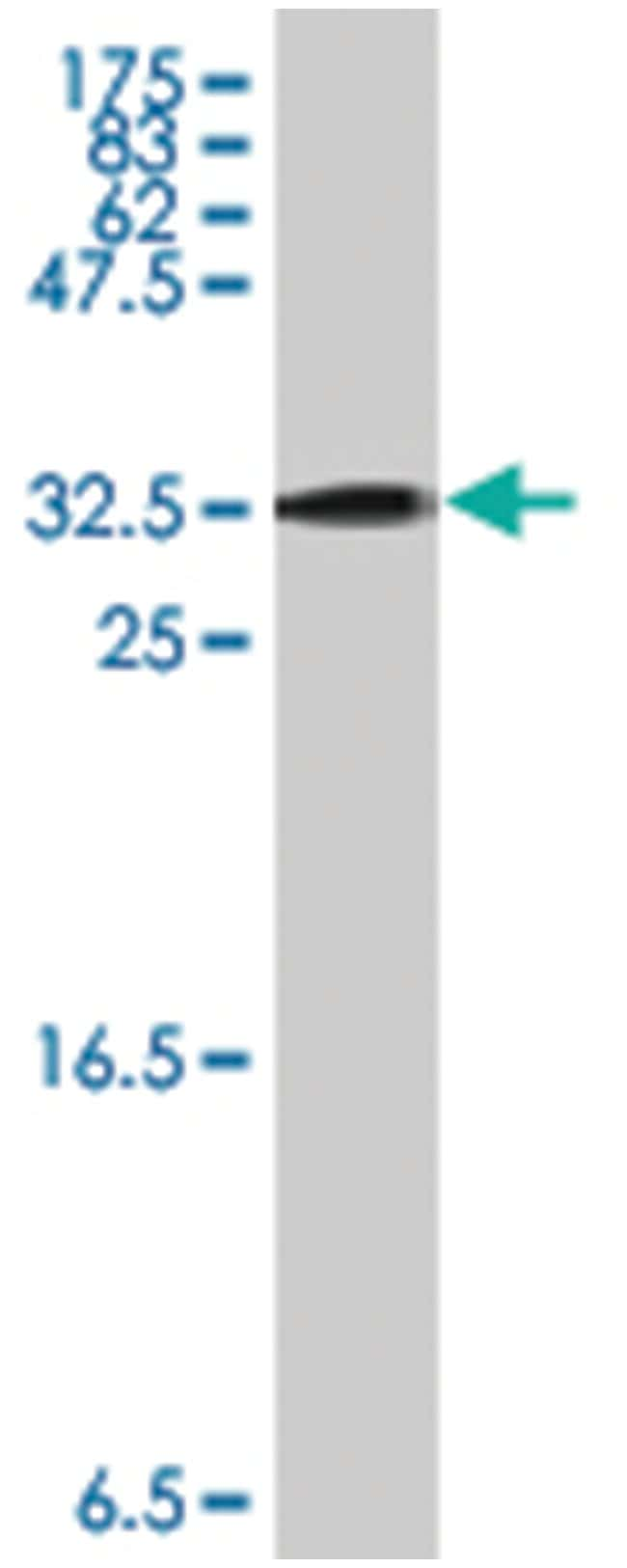 GAL, Mouse, Polyclonal Antibody, Abnova 50µL; Unlabeled