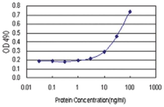 anti-PRRX2 Ab-2 Matched Antibody Pair, Abnova 1 Set, Unlabeled:Life Sciences