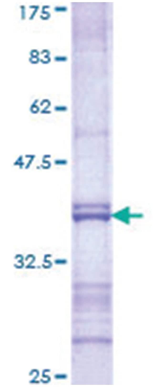 FEV Recombinant Protein, Abnova™ 10ug FEV Recombinant Protein, Abnova™